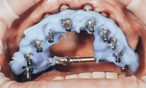 Implantologie dentaire Nice